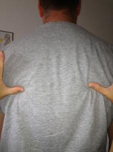 Before Treatment: Left Shoulder Blade Inferior to Right Shoulder Blade